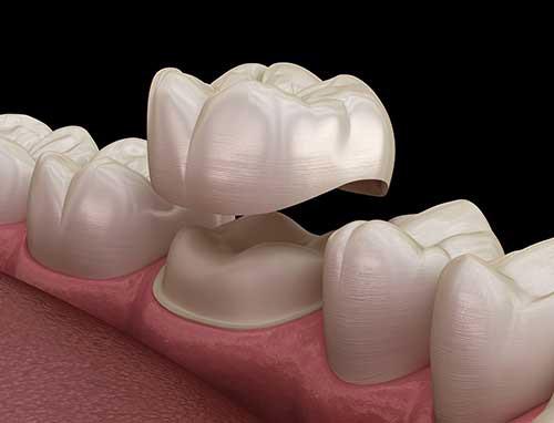 dental-crown-service-1